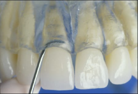 Figure 32 show a 5/6 Langer on anterior and premolar teeth