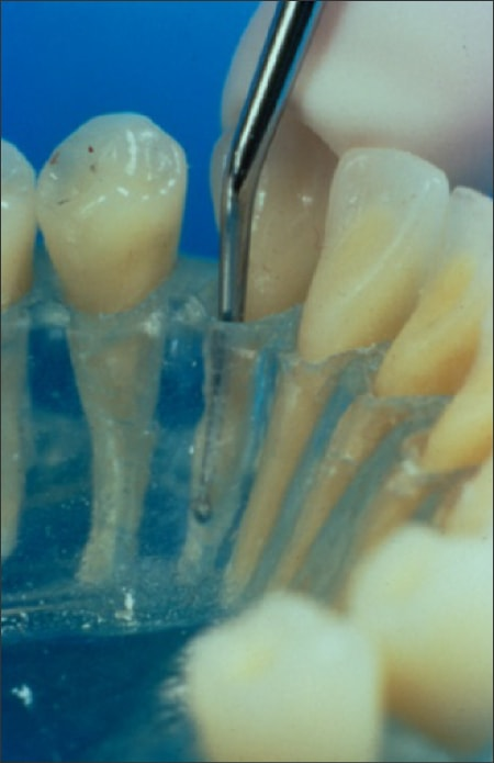 Figure 39 shows a 7/8 debridement curette probing a model teeth and gums