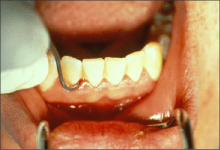 Figure 54 A Nevi 1 scaler – sickle end being used in a mouth