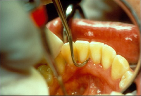 Figure 55 Nevi 1 scaler – sickle end being used in a mouth