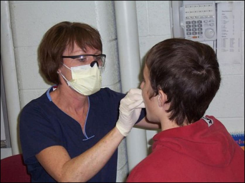 Photo showing application of fluoride varnish in a community-based setting.