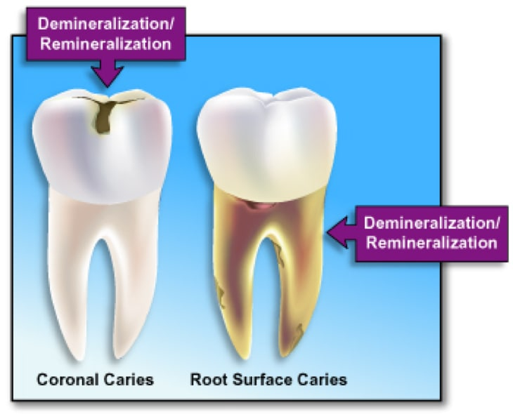 Image showing demineralization/remineralization.
