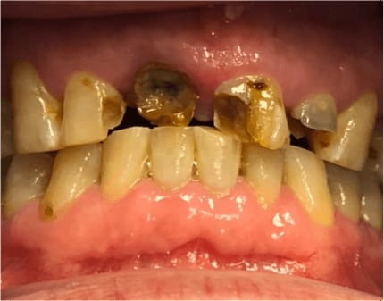 img09-dental-caries