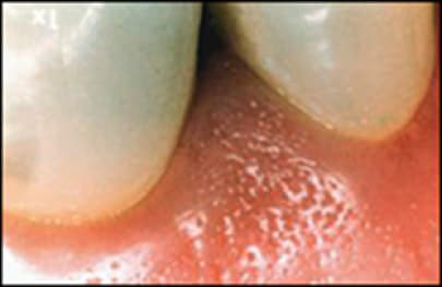 gingiva or gum and surrounding structures.