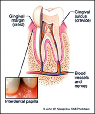 gingival margin.