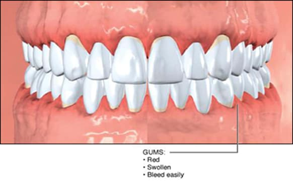 characteristics of gingivitis.
