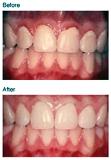 before and after of gingiva.