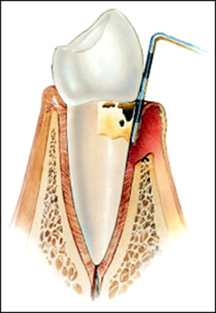 deep periodontal pocket.