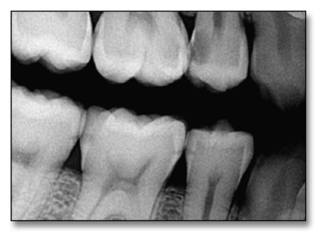 Image showing digital radiographs showing various stages of caries.