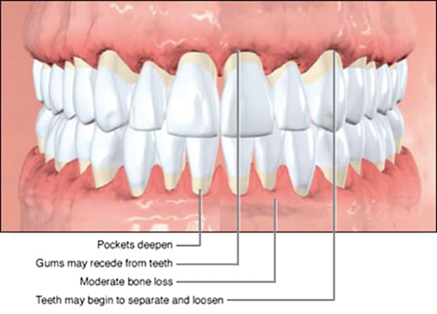 characteristics of periodontal disease.