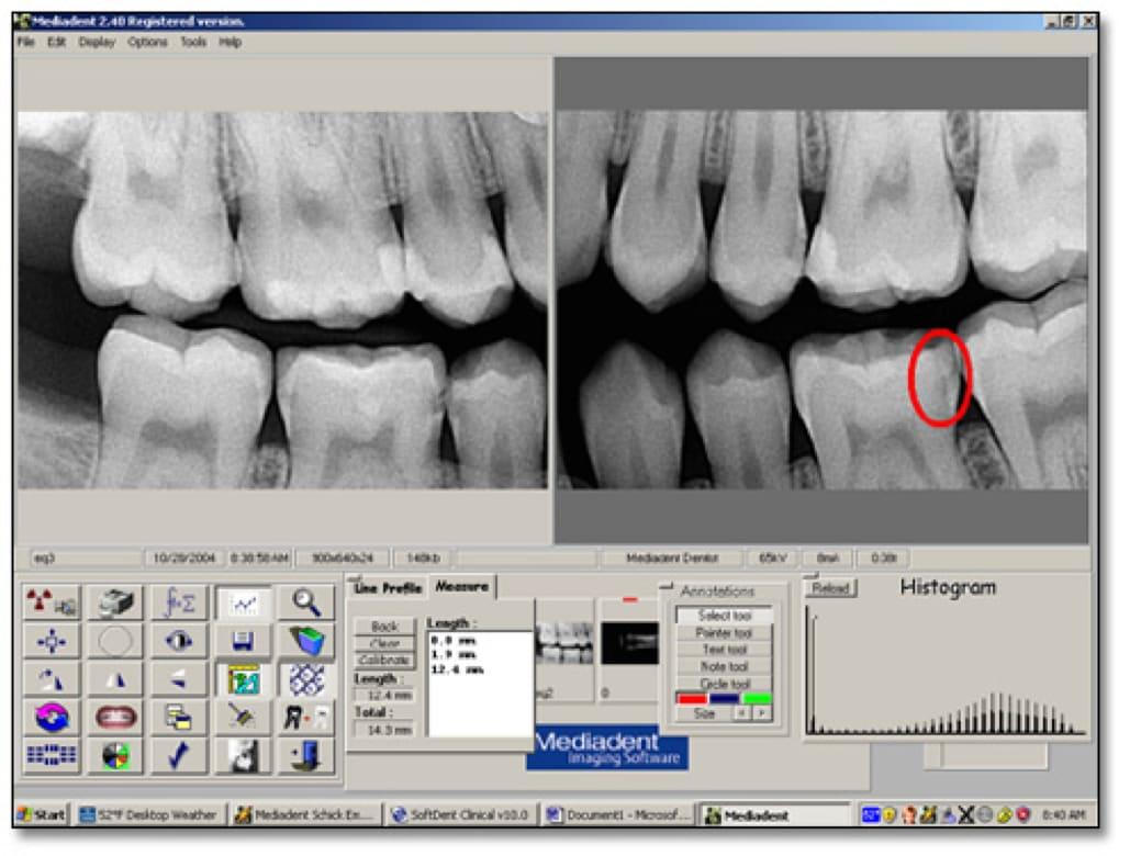 Image showing bitewing radiographs taken and viewed using the Mediadent system.