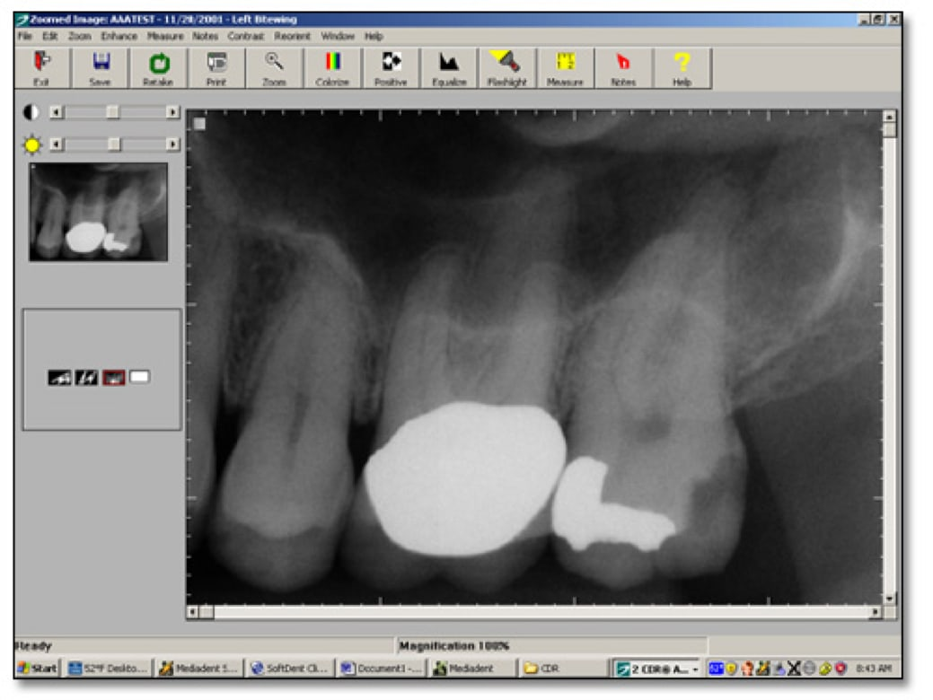 Image showing a digital peri-apical radiograph from the Schick system.