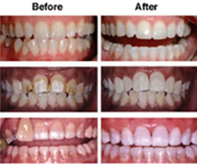 before and after of stained teeth.