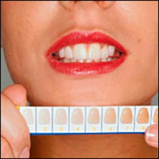 color matching for teeth whitening.