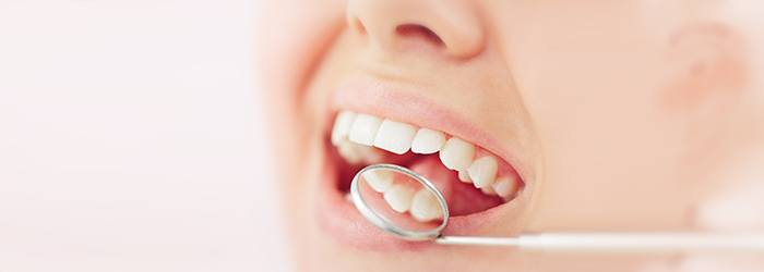 Cavities and Tooth Decay Symptoms Causes and Treatment