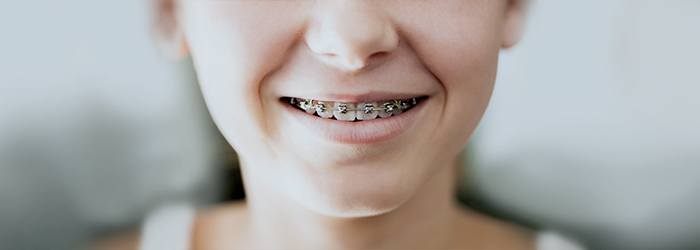 4 Easy Facts About How Braces Work Explained