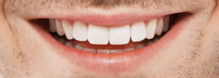 Don T Believe The Myths About Teeth Whitening Crest