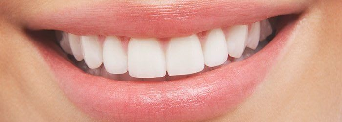 How-Much-Does-Teeth-Whitening-Cost