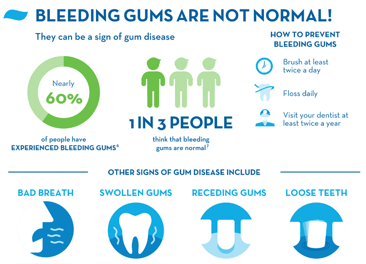 Bleeding Gums Causes Treatments And Prevention Crest