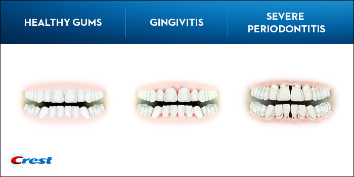 What is Gingivitis? Symptoms, Causes, and Treatments | Crest