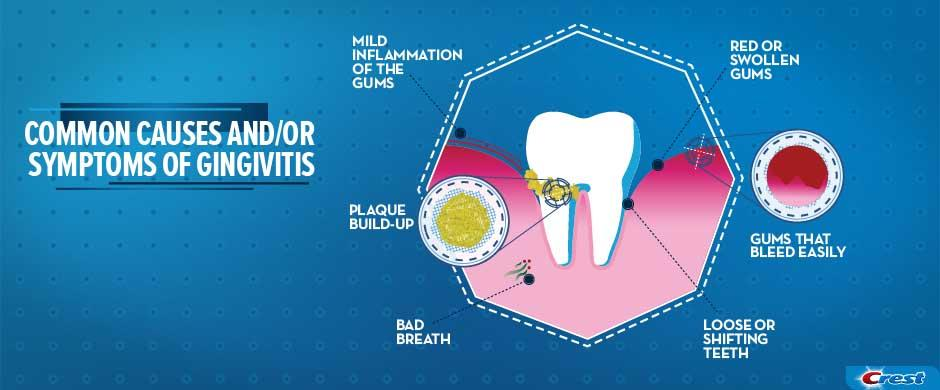Common Causes and Symptoms of Gingivitis