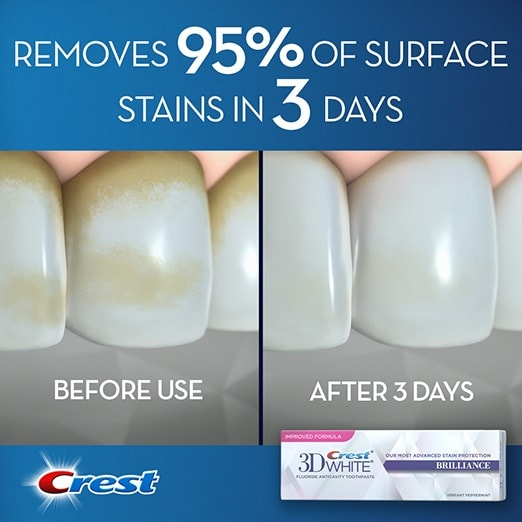 The before and after view of removing 95% of teeth stains with Crest 3D White toothpaste