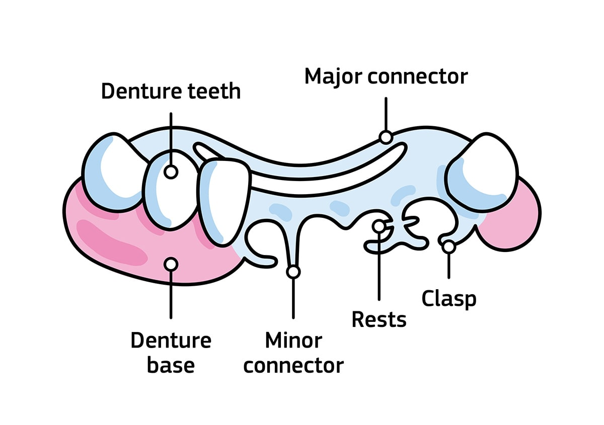 An infographic showing the different parts of the partial denture, like the denture teeth, denture base, minor connector, rests, clasp and major connector.