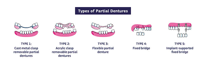 An infographic showing different types of partial dentures: Cast metal clasp removable partial dentures, acrylic clasp removable partial dentures, flexible partial denture, fixed bridge, implant-supported fixed bridge.