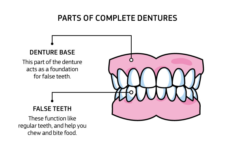 Infographic showing Parts of complete dentures: Denture base: this part of the denture acts as a foundation for artificial teeth. Artificial teeth: these function like regular teeth, and help you chew and bite food.