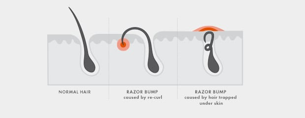 Normal hair vs. razor bump caused by re-curl vs. razor bump caused by hair trapped under skin
