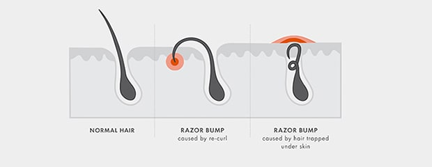 RAZOR BUMPS: HERE'S THE DEAL