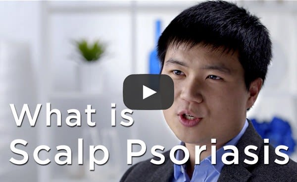 Is There a Shampoo for Scalp Psoriasis?