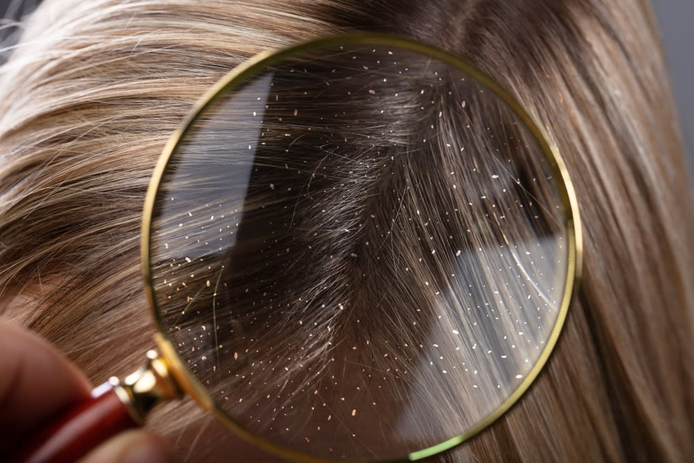 What are the different types of dandruff?