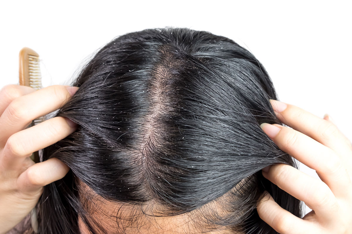 Dandruff or head lice how to spot the difference 1