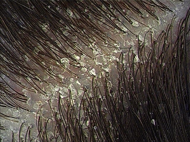Dandruff on scalp