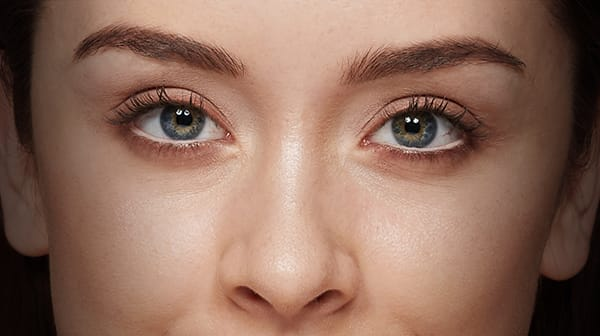 How to get rid of dark circle and puffy eyes?