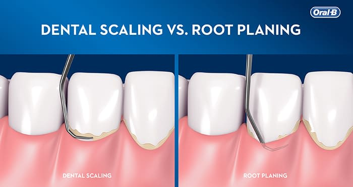 Dental scaling vs root planing