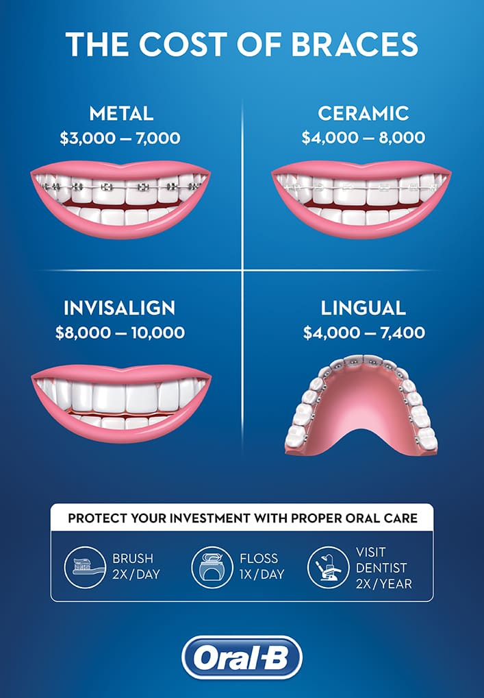 How Much Do Braces Cost? | Oral-B