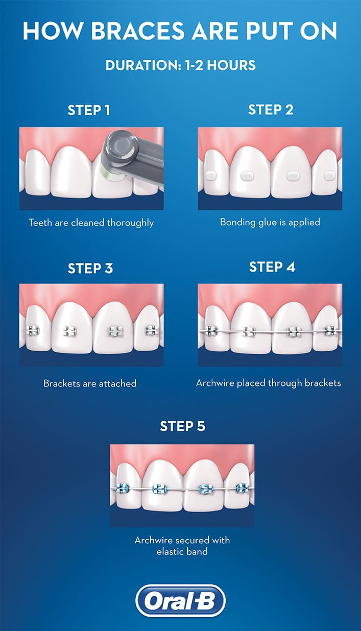 Getting Braces Fundamentals Explained