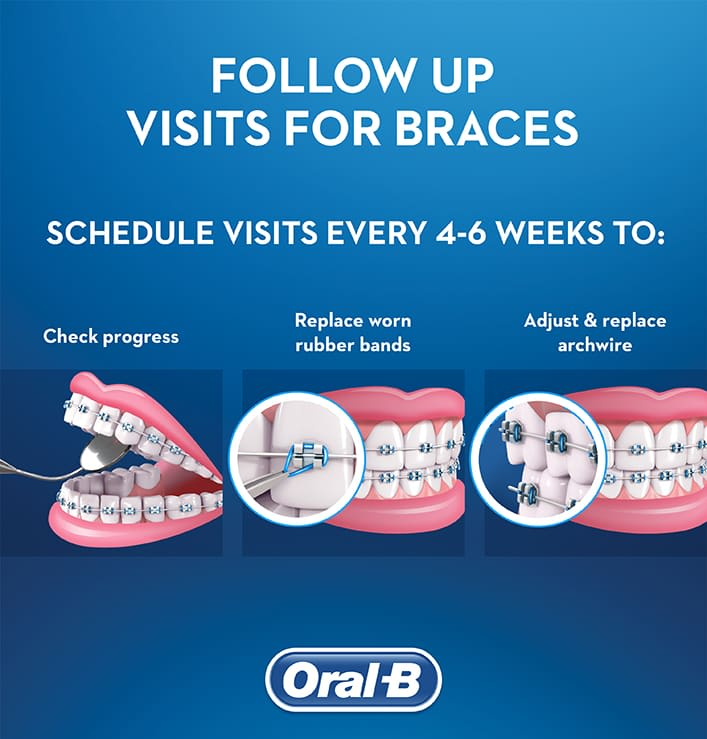 The 30-Second Trick For How Long Do Braces Last