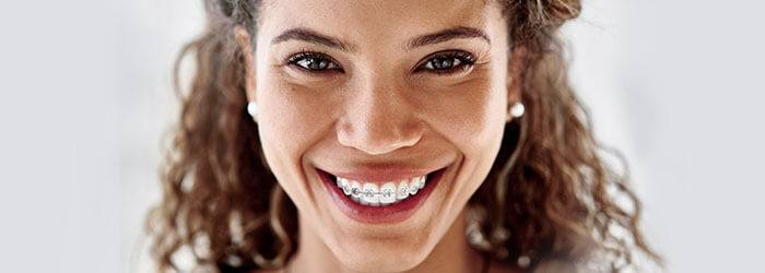Braces Tips and Tricks