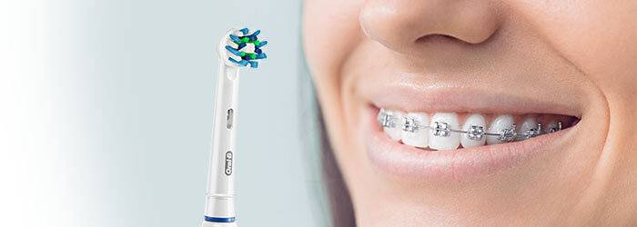 How to Brush Your Teeth & Floss With Braces