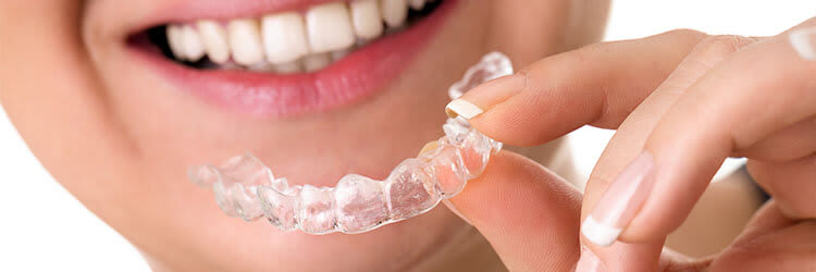 Types Sports Mouthguards Protect Teeth