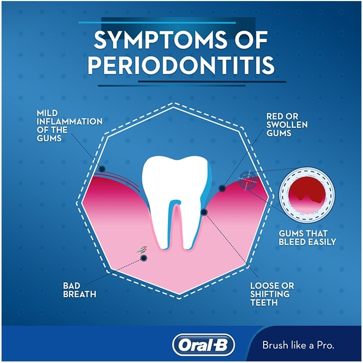 Symptoms of periodontitis