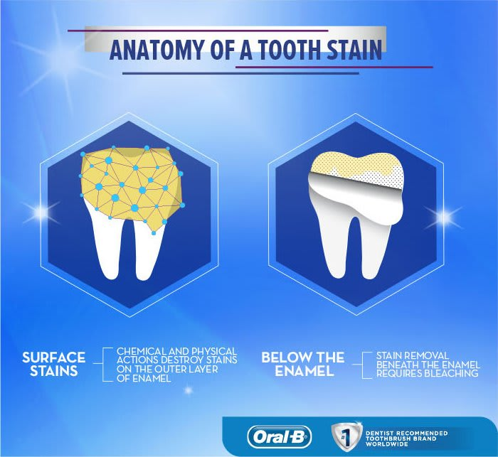 Anatomy of a tooth stain