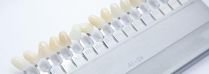 What To Expect When Getting Tooth Veneers