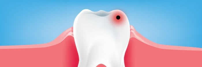 What Dental Caries Treatments Signs Symptoms