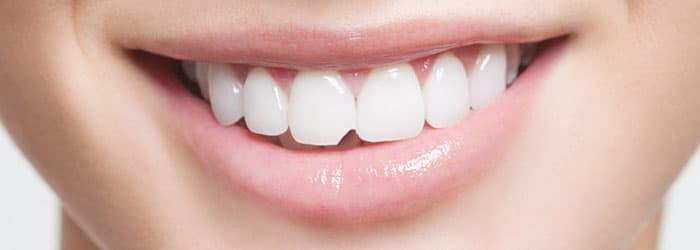 Chipped Tooth Repair with Chipped Tooth Bonding