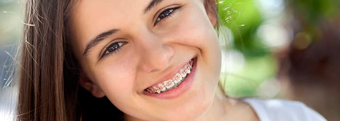 Frequently Asked Questions About Braces