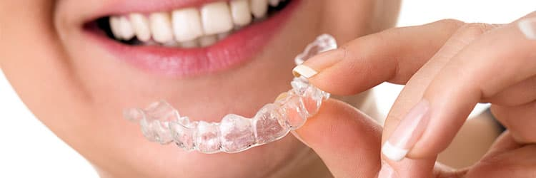 Types of Sports Mouthguards to Protect Teeth